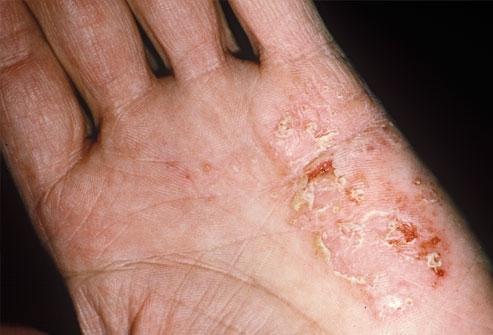 Атопический дерматит кожа очень сухая кожа199