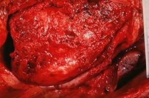 Перикардит - воспаление перикарды