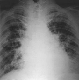 Химический пневмонит