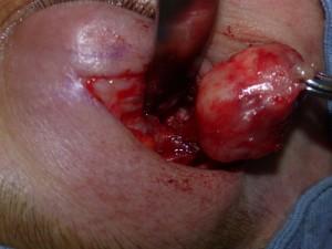 Опухоль слезной железы
