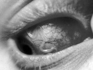 Токсокароз и глаз человека