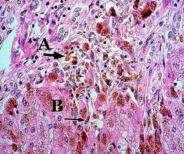 Гемохроматоз 1