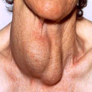 Изменение формы и размера щитовидной железы
