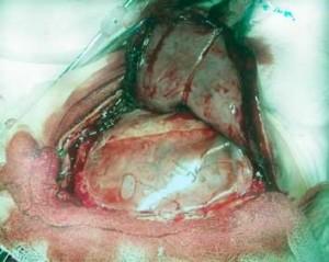 Лечение аневризмы мозга