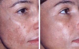 Мелазма - изменение цвета кожи. Симптомы и лечение