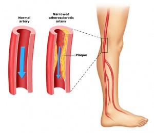 Заболевания периферических артерий - ноги