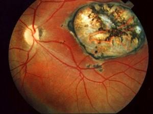 Токсоплазмоз и глаз